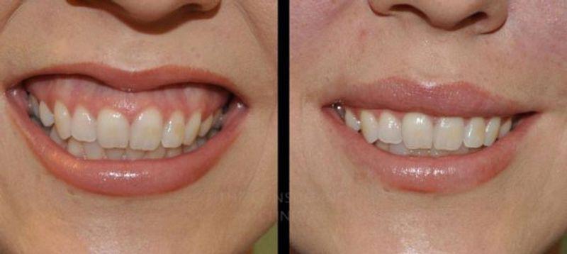 قبل و بعد از بوتاکس لبخند لثه ای