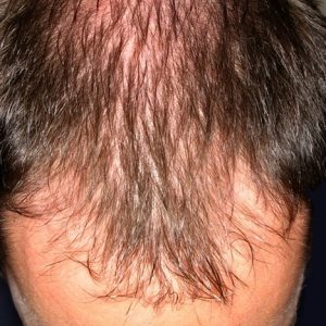 ریزش مو با الگوی مردانه