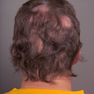 ریزش مو منطقه ای