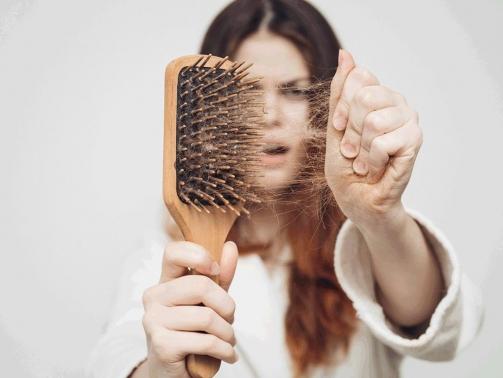 علت ریزش مو
