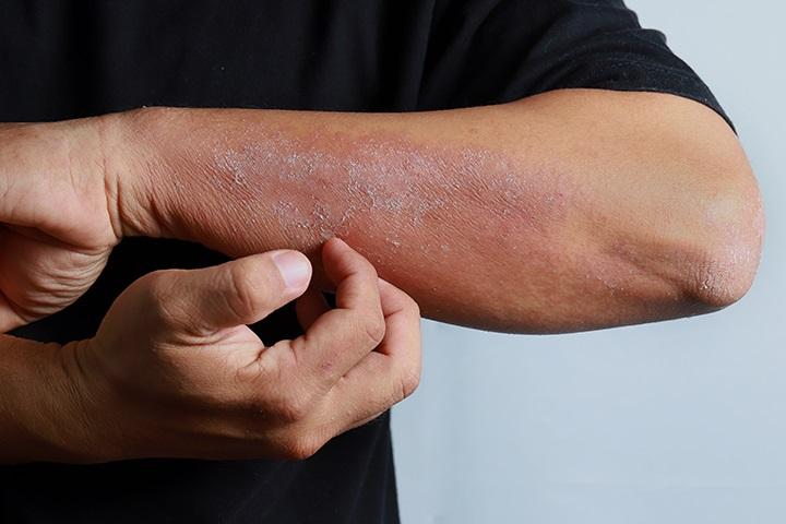 پاکسازی پوست بسیار حساس