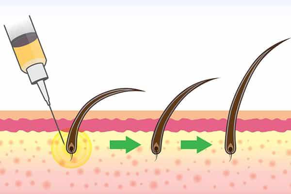 استفاده از سلول های بنیادی برای رشد مو