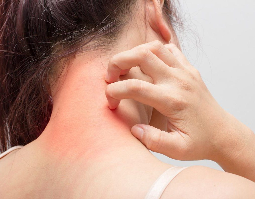 علت خارش پوست چیست؟