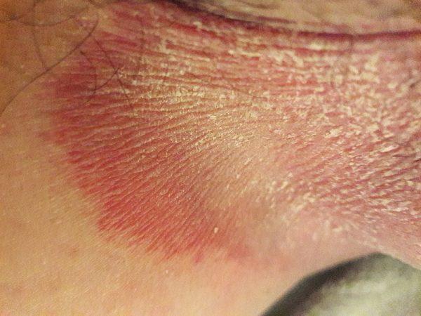 عکس قارچ پوستی ناحیه تناسلی - بیماری جوک