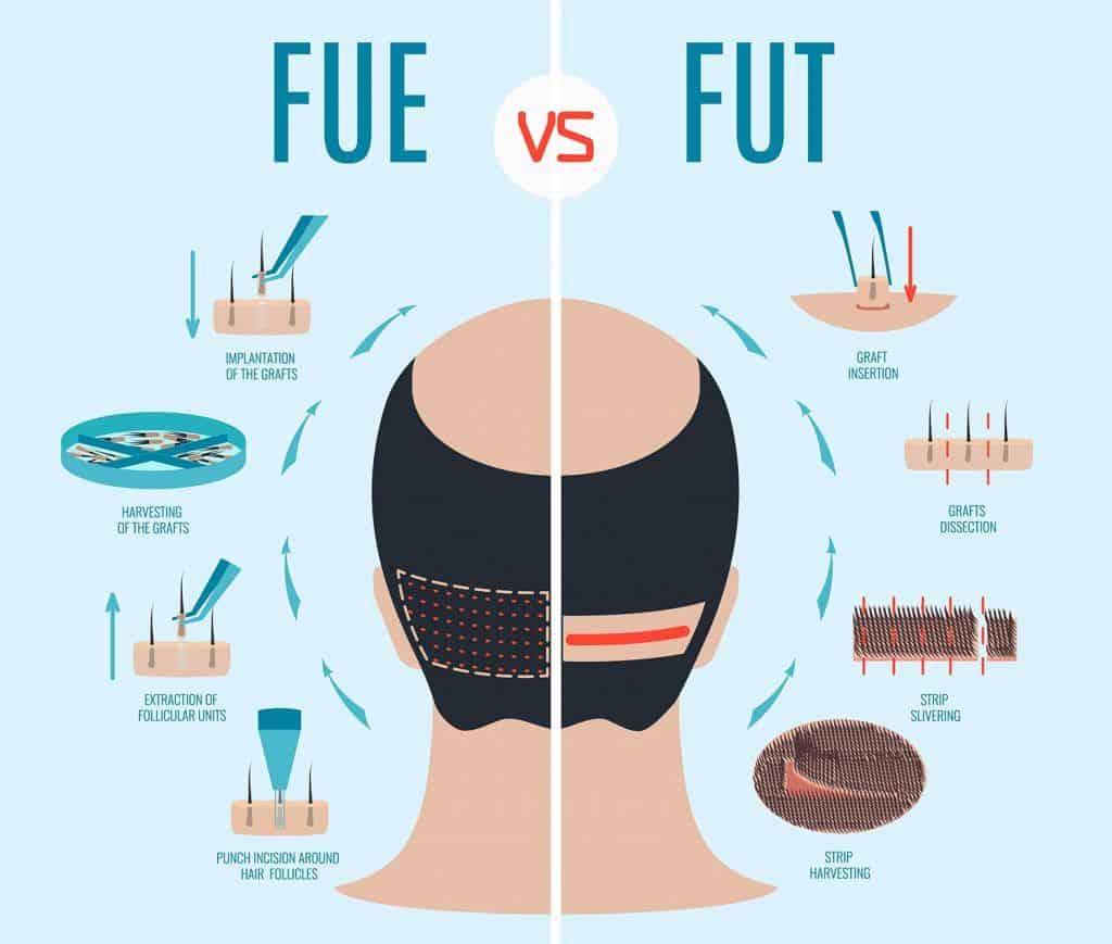 کاشت مو به روش FUE و FUT