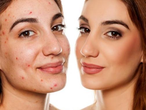 درمان آکنه - از بین بردن جوش صورت