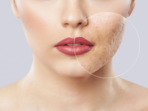 روش های درمان اسکار آکنه صورت - از بین بردن جای جوش صورت