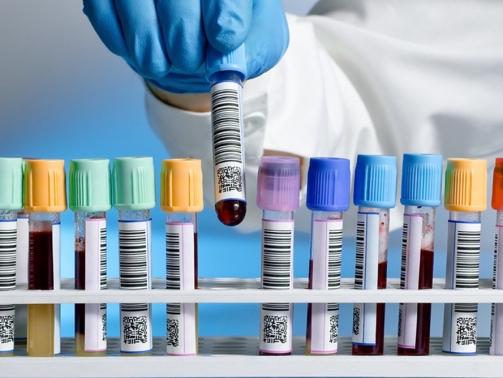 آزمایش آکنه - آزمایش خون برای درمان جوش صورت و بدن