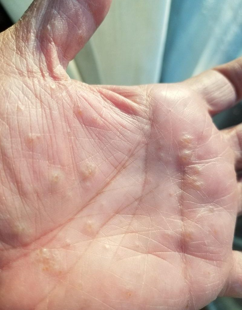 اگزما دیسهیدروتیک : تاول های کوچک روی دست