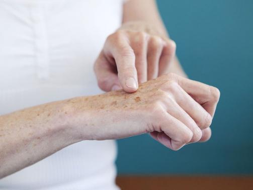 لکه های پوستی روی دست