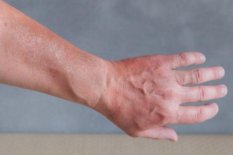 لکه های پوستی روی دست ناشی از آفتاب
