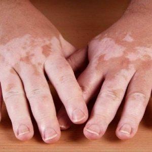 لکه های سفید روی بدن