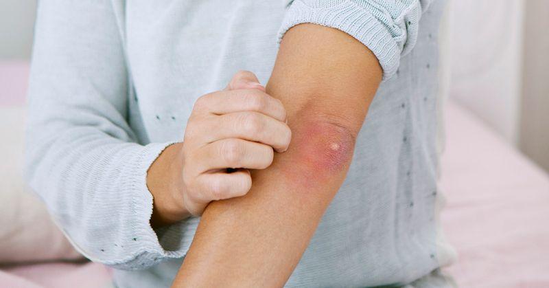 درمان جوش آرنج