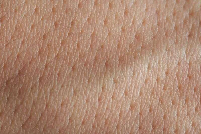 عکس پوست پرتقالی