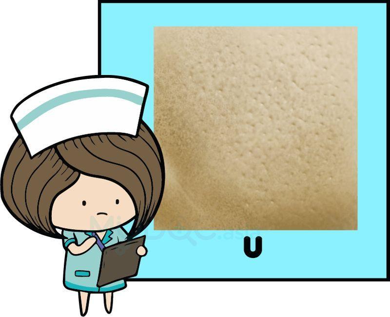 منافذ باز پوست به شکل U