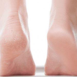 بهترین درمان ترک کف پا