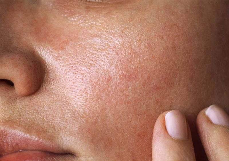 پوست براق چیست