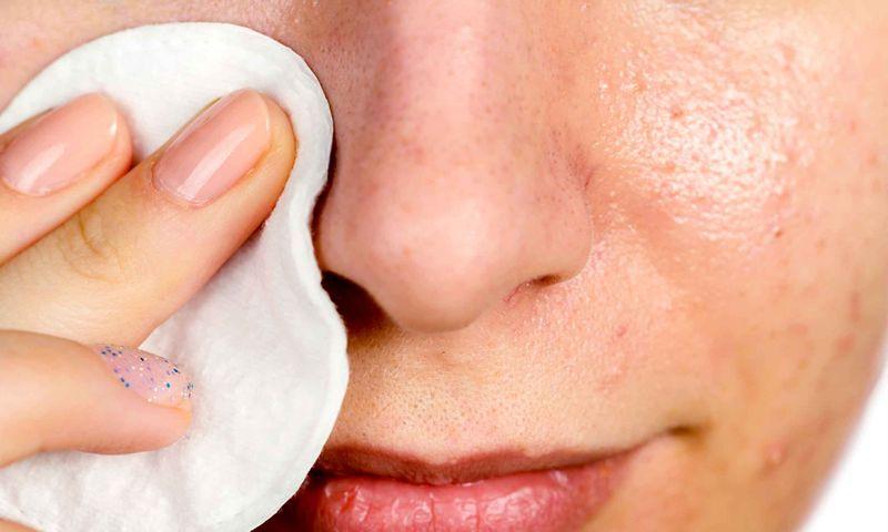 درمان جوش سر سیاه بینی