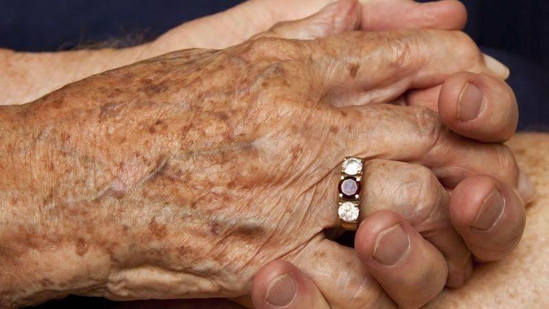 لکه های قهوه ای روی پوست دست