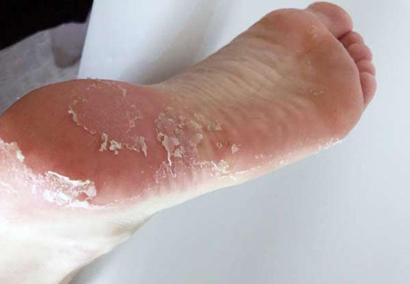 پوست پوست شدن کف پا