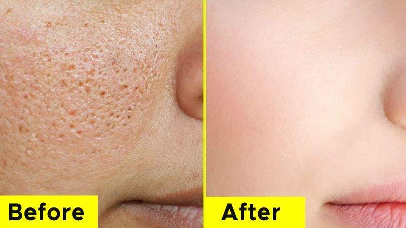 درمان پوست پرتقالی با لیزر