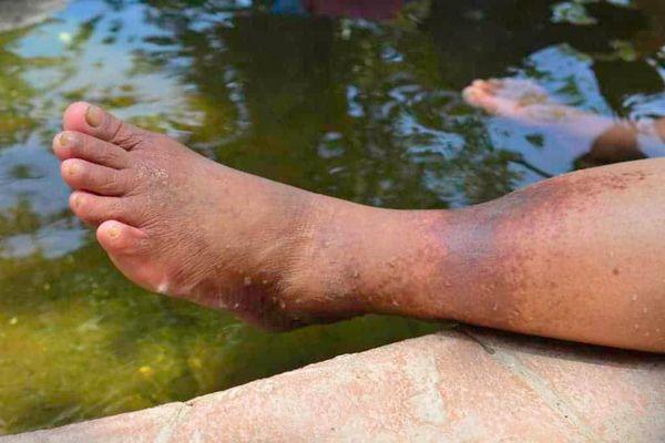 علت لکه های سیاه روی پوست پا