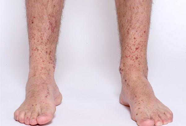 لکه های قهوه ای روی ساق پا