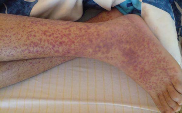 لکههای بنفش روی ساق پا