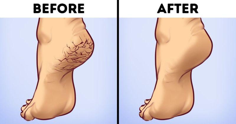 درمان ترک پا با گلیسیرین