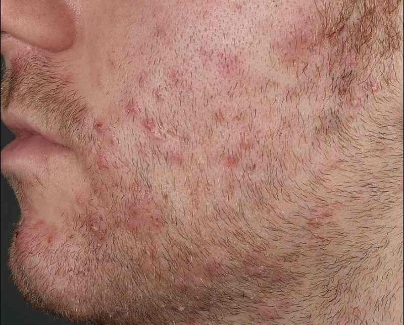 فولیکولیت ناشی از رشد مجدد موها