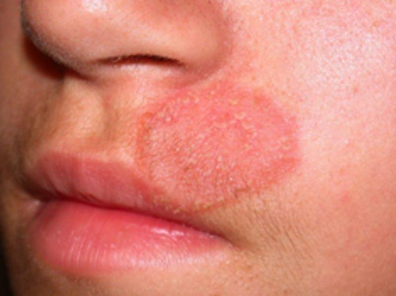 قارچ پوستی صورت