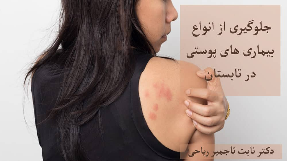 جلوگیری از ایجاد لکه های پوستی