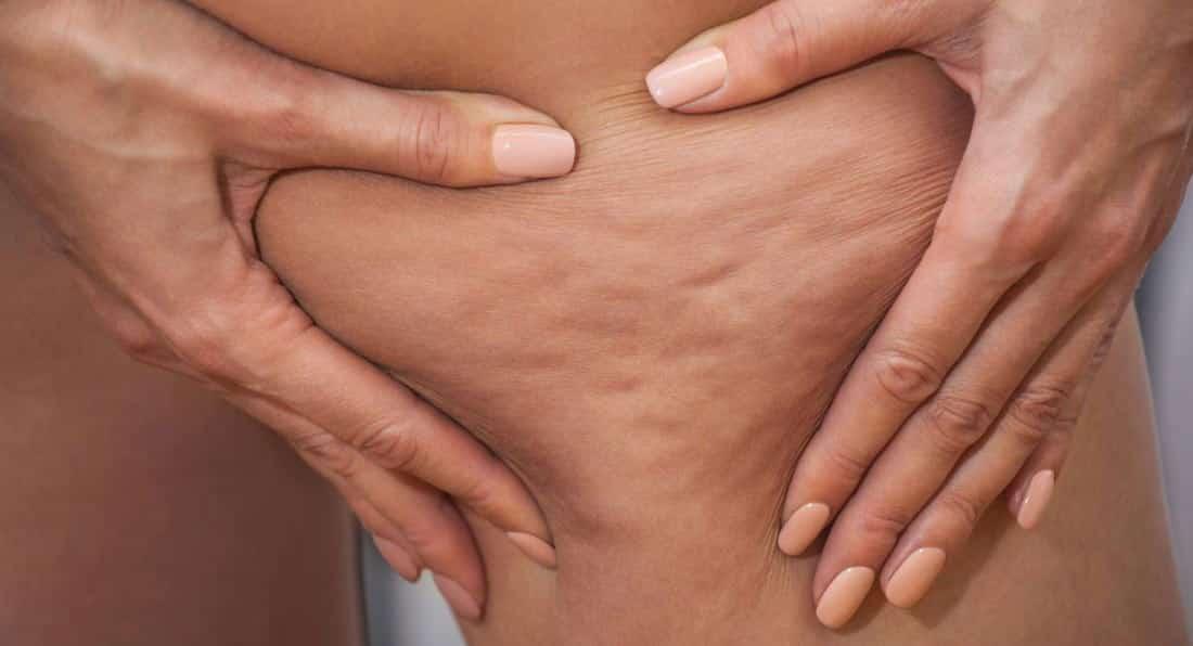 درمان سلولیت