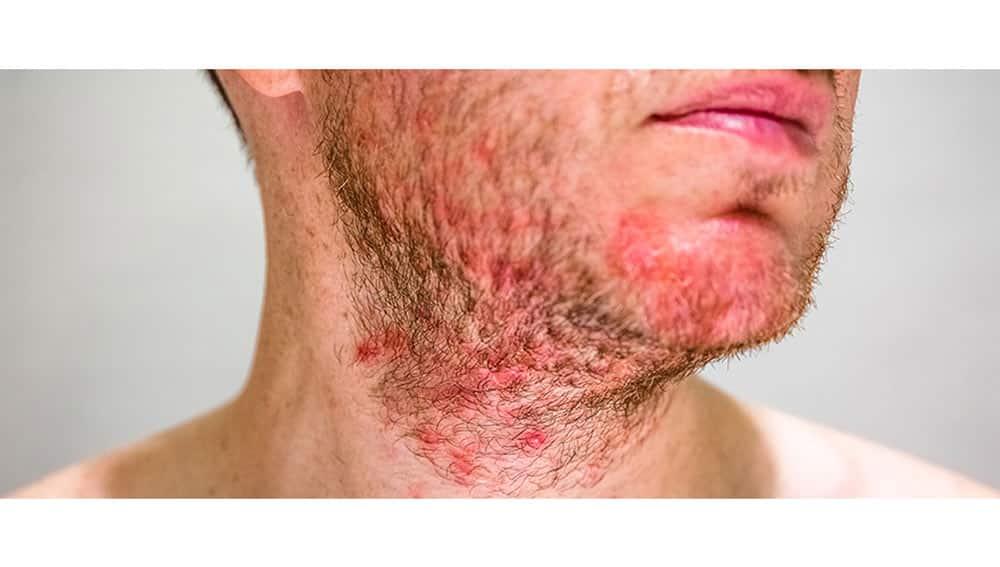 درماتیت سبوره روی پوست