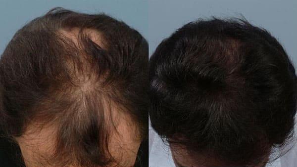 درمان ریزش مو با ماینوکسیدیل