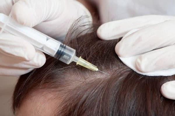 درمان ریزش سکه ای ریش آقایان