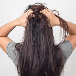 علت و درمان خارش سر و ریزش مو