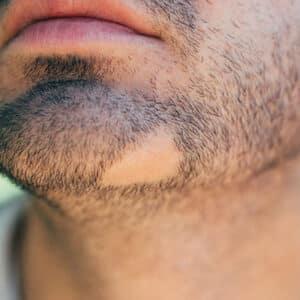 علت و درمان ریزش سکه ای ریش آقایان