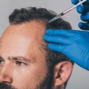 آمپول برای رشد سریع موی سر