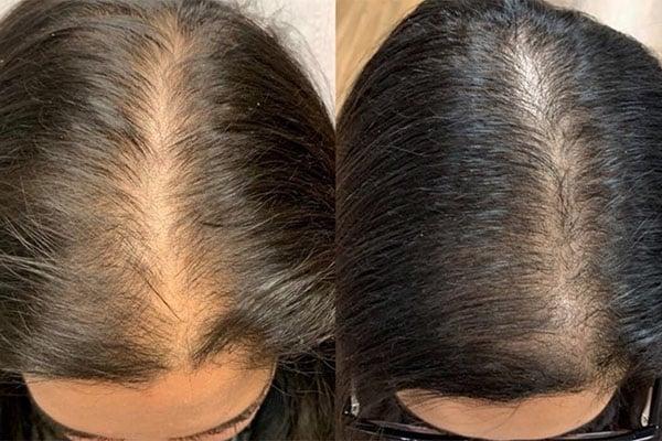 آمپول ضد ریزش مو