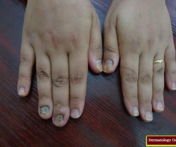 عکس قارچ ناخن - عفونت ناخن دست