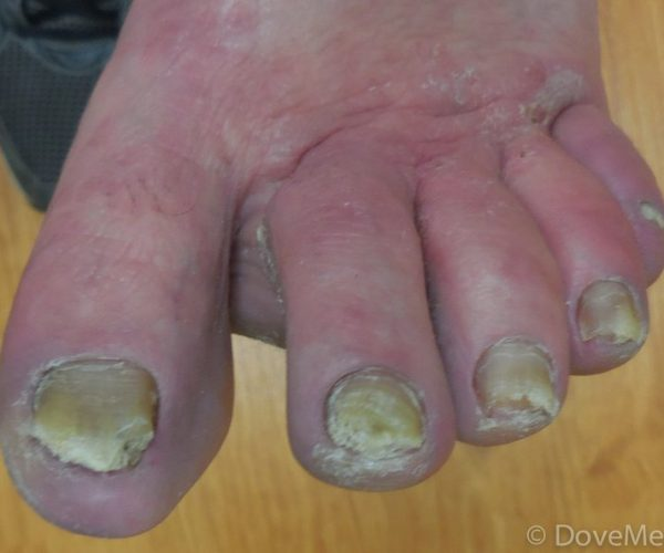 عکس قارچ ناخن - عفونت ناخن پا