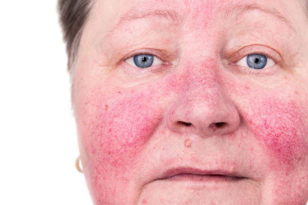 پاکسازی پوست مبتلا به روزاسه